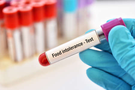 Test tube with blood sample for food intolerance test