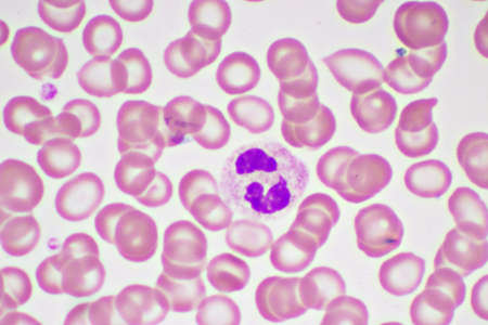 Segmented neutrophil cell in human blood smear, analyze by microscope, original magnification 1000x Stock Photo
