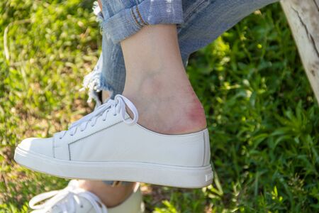 The girl rubbed the callus after putting on new leather shoes