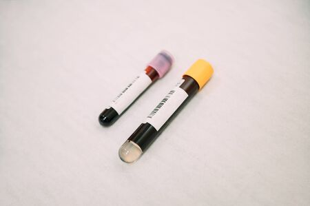 Two tubes with blood samples to be analysed for possible covid19 infected. Concept of health and medicine