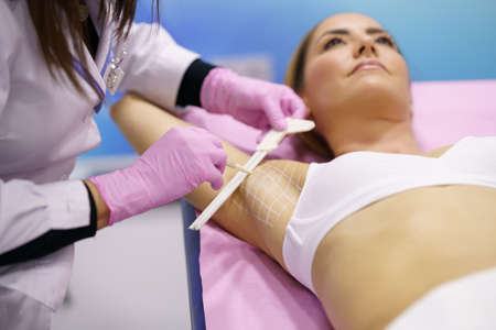 Doctor painting on the armpit of her patient, the area to be treated for hyperhidrosis. Imagens