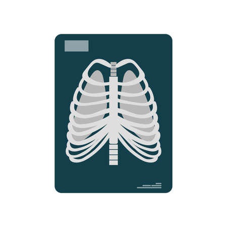 Vector illustration of a snapshot of the lungs. X-ray of the lungs isolated on a white background.