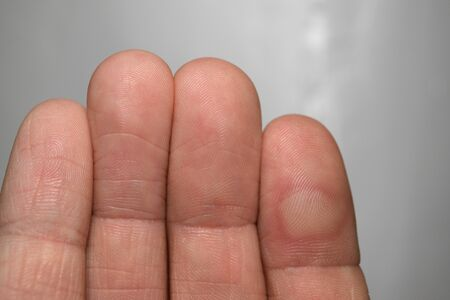 Hand with a finger injured with a blister. Banque d'images - 143578454