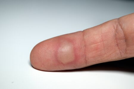 Closeup of an isolated index finger with a blister on a white background. Domestic injury due to burning. Banque d'images - 143578455