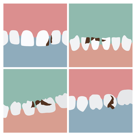 Teeth with cavities - vector illustrations