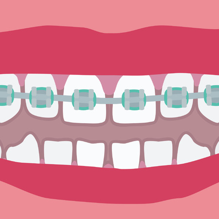 Human teeth with braces - vector illustration. Illustration