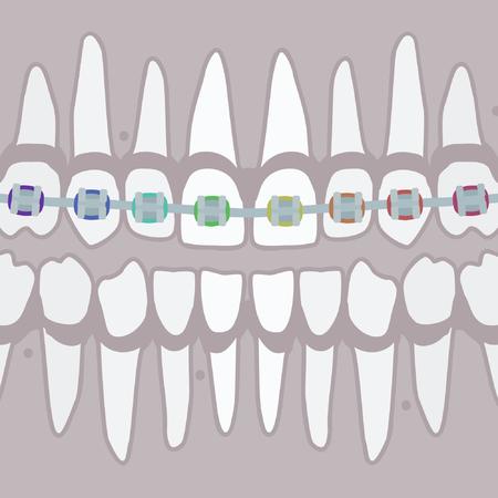 Human teeth with braces  - vector illustration