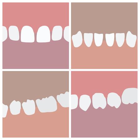 Human teeth segments - vector illustrations