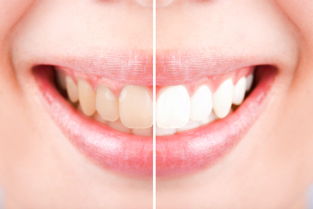 tooth whitening: Close-up teeth female between before and after brush the teeth, selective focus Stock Photo