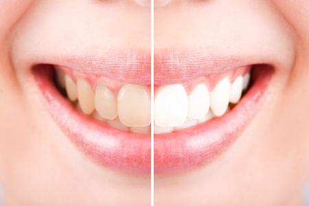 dientes sucios: Primer plano dientes femeninos entre antes y despu�s de cepillo de los dientes, enfoque selectivo Foto de archivo