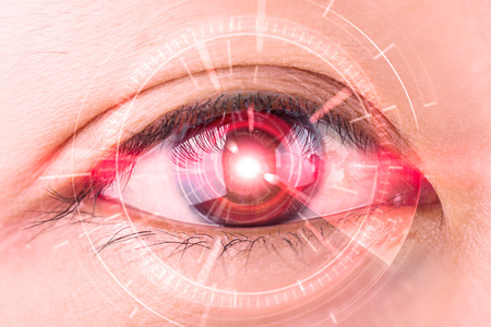 eye red: Close-up of womans red eye the futuristic, contact lens, eye cataract