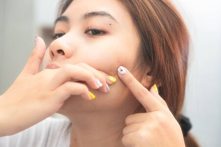 Beautiful girl is squeezing pimples on her face while looking into the mirror.