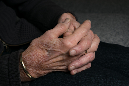 artrosis: manos de la señora mayor con artritis artrosis también conocido como