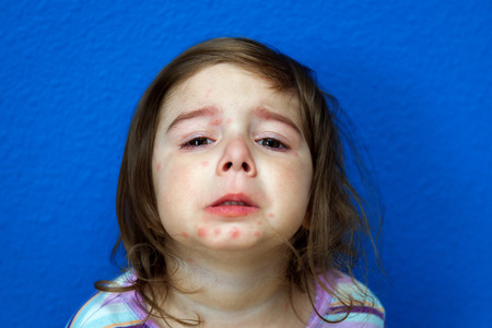 varicella: A little girl with the Chicken Pox holds her chin up to show her marks.  She has been crying. Stock Photo