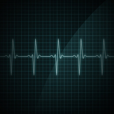 heart rate: Healthy heart beat on monitor screen. Medical illustration. Stock Photo