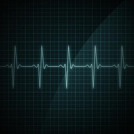 puls: Zdrowe bicie serca na ekranie monitora. Medyczne ilustracji.