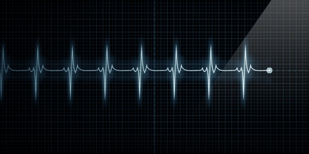 Horizontal Pulse Trace Heart Monitor photo