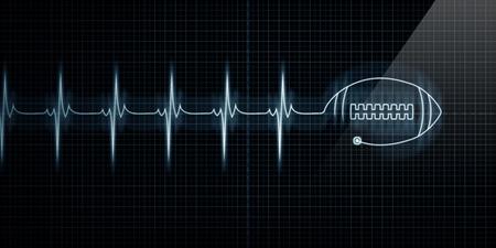 pulso: Horizontal pulso traza coraz�n Monitor con un f�tbol en l�nea. Concepto de medicina deportiva, los aficionados al f�tbol o muerte de futbolistas. Foto de archivo