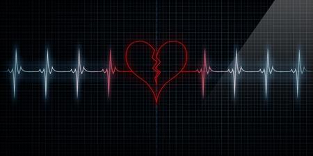 infarto: Red de seguimiento horizontal pulso del coraz�n del monitor con el s�mbolo de un coraz�n roto en consonancia con el pulso. Concepto para el coraz�n roto o un ataque al coraz�n o p�rdida amor. Foto de archivo
