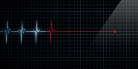 heart rate: Horizontal Pulse Trace Heart Monitor At Death