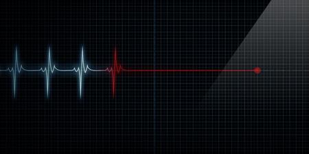 puls: Pozioma Åšlad Pulse monitor pracy serca przy zgonie Zdjęcie Seryjne