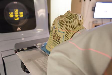 Patiëntstraling-therapiemasker met laserlijnen voor het richten op kankercellen in de hersenen Stockfoto