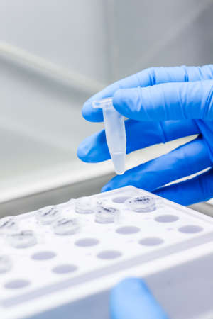 Blue medical glove taking a tube with some biological sample material inside in a laboratory