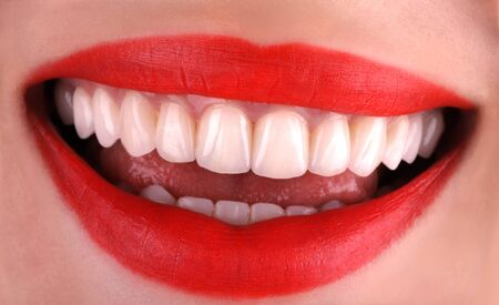 Perfect healthy teeth beautiful wide smile bleaching procedure whitening of young smiling attractive red lips woman. Dental restoration treatment Close Up oral care, stomatology Dentistry Stockfoto