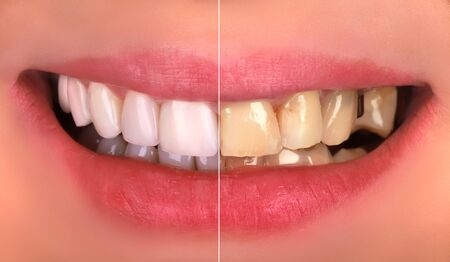 Perfect smile before and after bleaching procedure whitening of young happy smiling woman . Dental restoration treatment clinic patient.Demonstration result of oral care dentistry, stomatology.