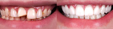 Perfect smile before and after veneers bleach of zircon arch ceramic prothesis Implants crowns. Dental restoration treatment patient. Wide Banner of oral surgery procedure whitening dentistry