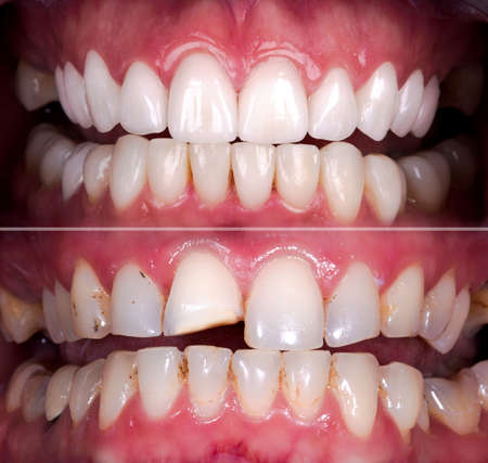 Perfect smile before and after veneers bleach of zircon arch ceramic prothesis Implants crowns. Dental restoration treatment patient. Wide Banner of oral surgery procedure whitening dentistry Archivio Fotografico