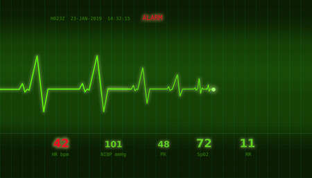 Graph of abnormal heartbeat on a green monitor with an ALARM signal 版權商用圖片