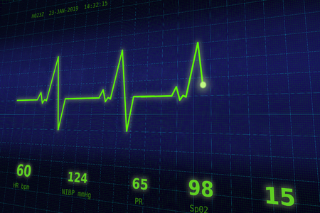 A graph of normal heartbeat on a blue monitor 写真素材