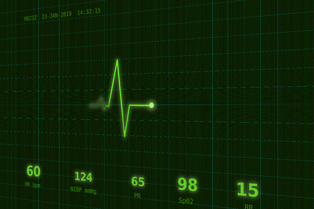 Graph of normal heartbeat on the green monitor slightly to the side