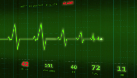 Graph of abnormal heartbeat on a green monitor with an ALARM signal 写真素材