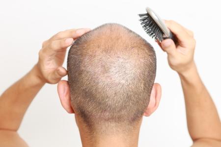 man brushs thin hair