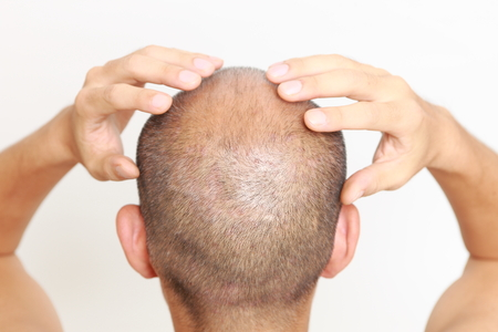 head and  back: scalp massage Stock Photo