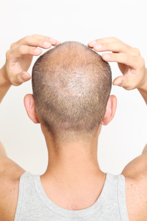 scalp: scalp massage Stock Photo