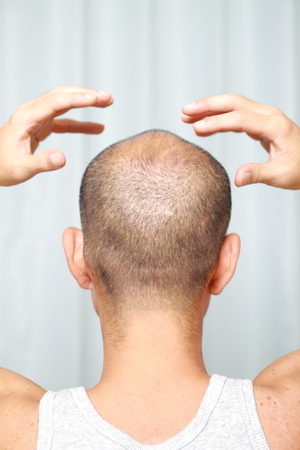 bald man: scalp massage Stock Photo