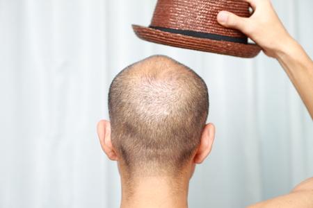 bald man: hombre calvo con un sombrero