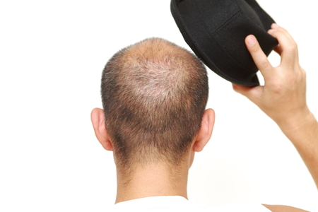 hair loss: bald man with a hat
