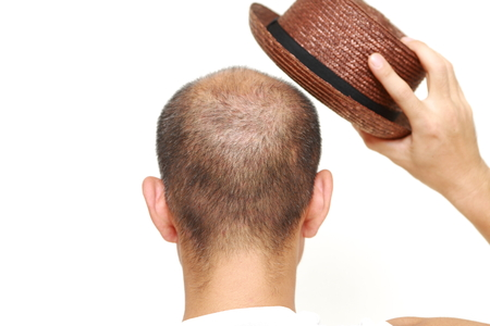 bald man with a hat photo