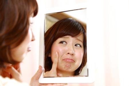 乾燥肌荒れを心配する日本の若い女性 写真素材