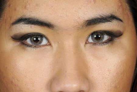 contact: closeup of a young asian girl with a bad acne condition, and contact lenses that are colored to darken her eye color
