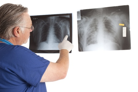 Doctor examining x-rays photo
