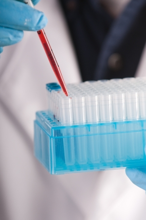 culture: Research scientist with blood samples and culture dish for analysis