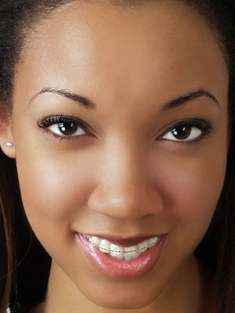 Tight portrait of black woman with braces upper teeth