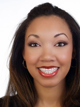 Portrait of young black woman with braces upper teeth