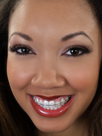 Young black woman closeup portrait braces upper teeth   Stock fotó