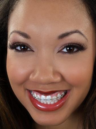 Young black woman closeup portrait braces upper teeth   photo